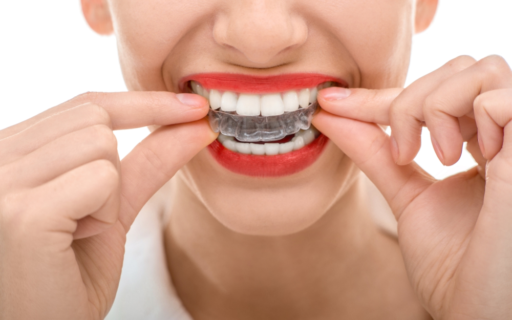Invisalign at Verum Cosmetic Dentists Coventry
